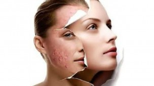 anti-acne-fisest