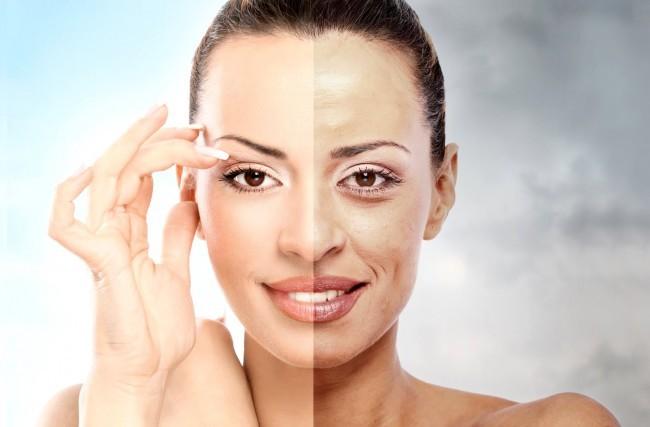 Ativos diferenciados – Tratamento clareador das manchas