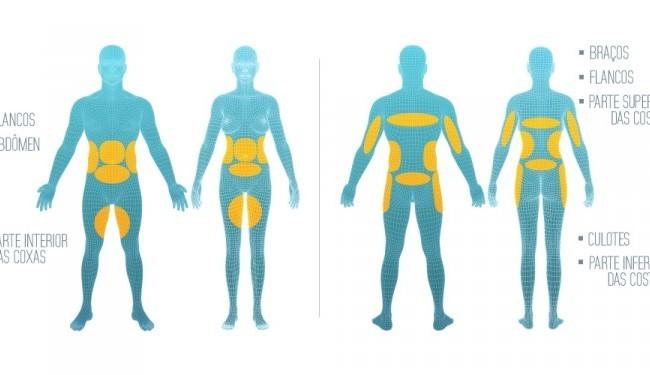 Criolipólise funciona? Saiba tudo sobre o tratamento que elimina gordura localizada sem cirurgia