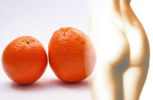 Tratamentos Estéticos para Celulite: Quais são os Melhores?